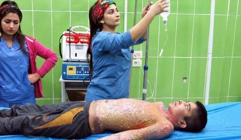 터키, 시리아 쿠르드족 민간인 상대로 백린탄 사용